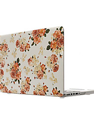 "Fashion  Plastic Hard  Full Body Case for Macbook Air 11"" Pro 13""/15"""